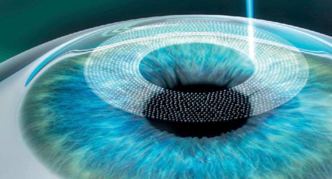 oeil-chirurgie-laser
